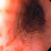 Endoscopy screenshot