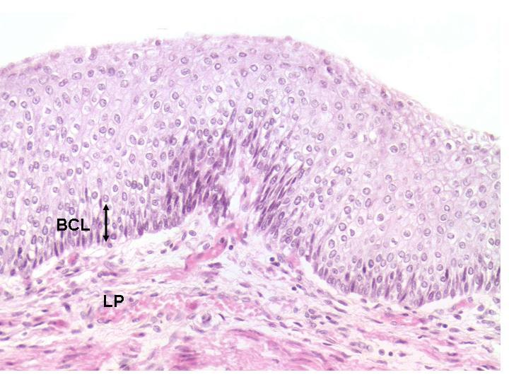 UMHS Esophageal Disorders Program